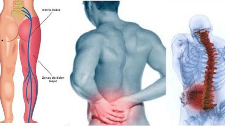 remedios caseros para dolor nervio ciatico